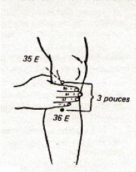 Curso Puntos de Acupuntura aplicados al Karate-do - Rincon..